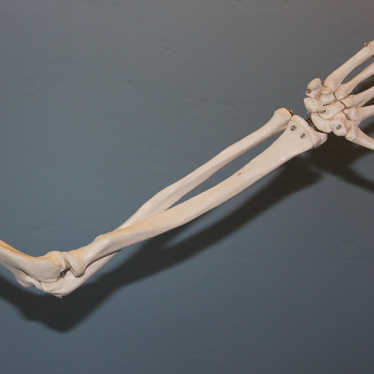 radius ulna underarm attachment